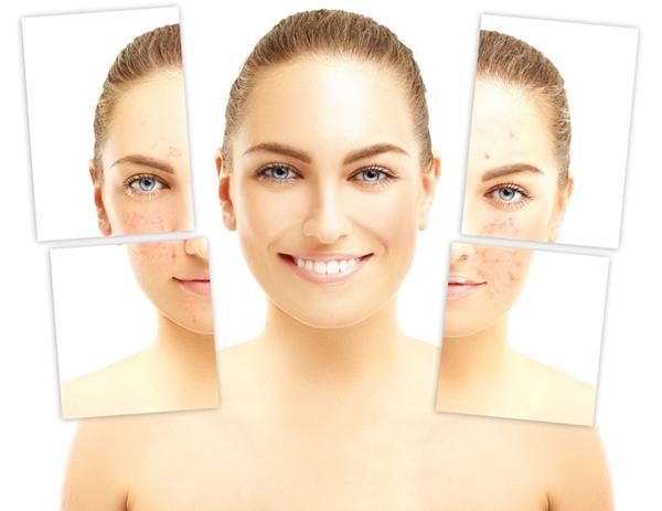 Mesotherapie Akne - hilft ihrer Haut